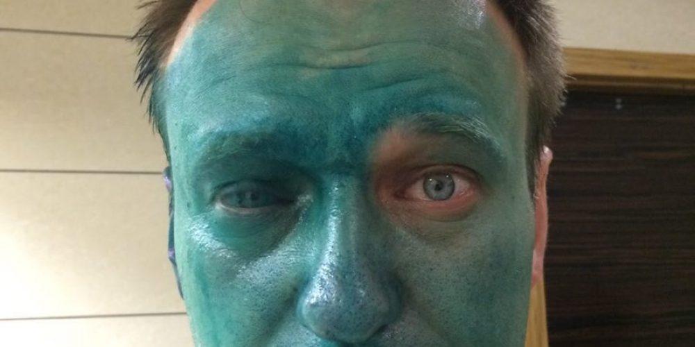 Навальному плеснули зеленкой в глаза